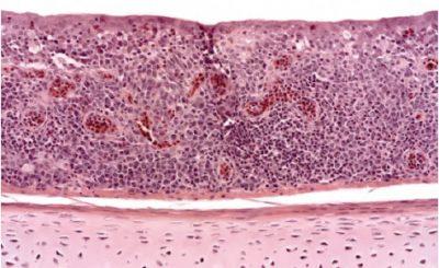 Virus viêm phế quản truyền nhiễm ở gia cầm